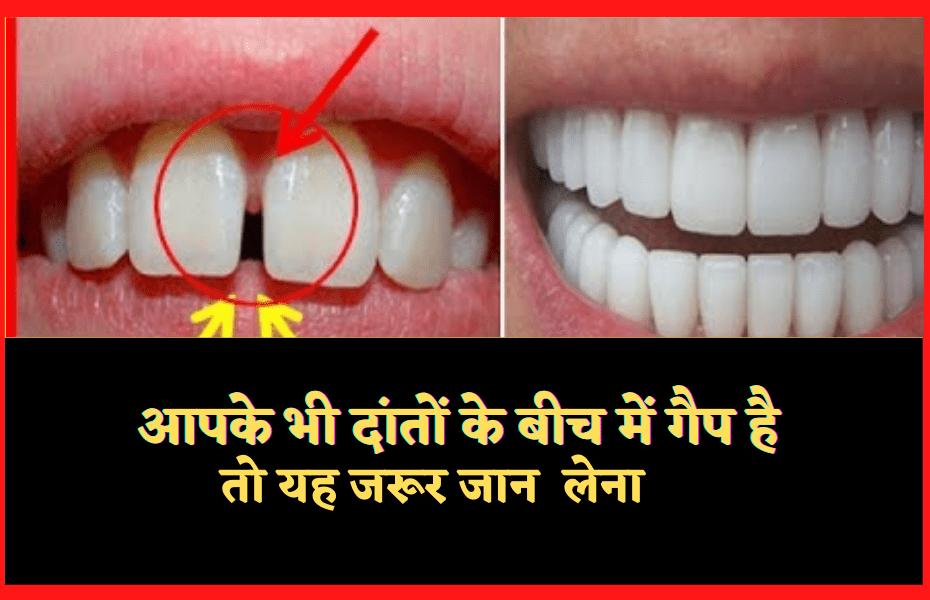 आपके_भी_दांतों_के_बीच_में_गैप_है_Gap_in_teeth_Astrology
